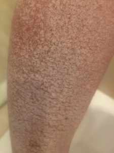 Oct 29 stuck calamine arm