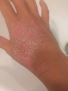 Oct 29 stuck calamine hand