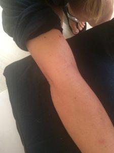 1016 forearm swelling